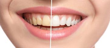 Femme de sourire avant et après des dents image stock