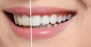 Femme de sourire avant et après des dents photos stock