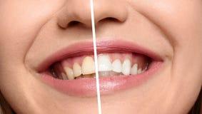 Femme de sourire avant et après des dents photo stock