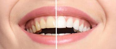 Femme de sourire avant et après des dents blanchissant la procédure photographie stock libre de droits