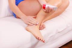 Femme mettant l'onguent sur la mauvaise cheville appliquant la crème photographie stock libre de droits