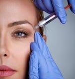 Femme pendant la chirurgie remplissant rides faciales images stock
