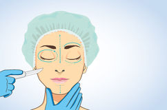 Femme prête à la chirurgie esthétique illustration de vecteur