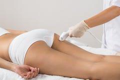 Femme recevant le traitement de laser sur des fesses photo libre de droits