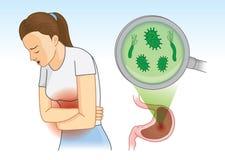 Femme souffrant avec le symptôme abdominal de douleur parce que bactérien dans l'estomac Illustration de Vecteur