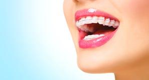 Femme souriant avec les accolades en céramique sur des dents Photographie stock libre de droits