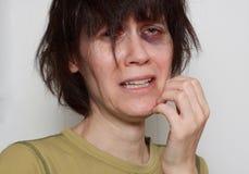 Femme triste avec l'oeil au beurre noir Photo stock