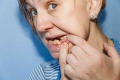 Femmes sans dent cassée photo libre de droits