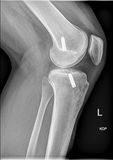 Femoral interference screw, Anatomical reconstruction of anterior cruciate ligament of the knee. Medical xray stock photo