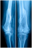 Femur fracture Stock Photography