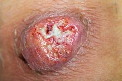 ferida Imagens de Stock