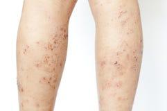 Ferida do prurido da eczema na vitela da criança Imagem de Stock