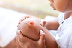 Ferida fresca e sangue do ferido no joelho da criança fotos de stock royalty free