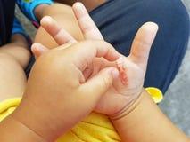 Ferida na mão de uma criança de uma queimadura do ferro fotografia de stock royalty free