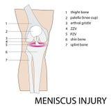 Ferita al ginocchio del menisco Fotografia Stock