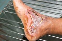 Ferita del piede diabetico Fotografie Stock Libere da Diritti