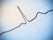 Fermez-vous d'un électrocardiogramme Images stock