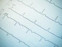 Fermez-vous d'un électrocardiogramme Image stock