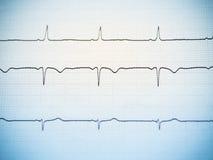 Fermez-vous d'un électrocardiogramme Photos stock