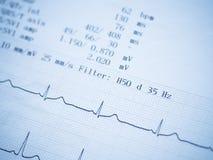 Fermez-vous d'un électrocardiogramme Images libres de droits