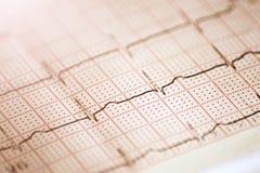 Fermez-vous d'un électrocardiogramme sous la forme de papier Image stock
