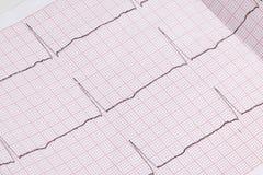 Fermez-vous d'un électrocardiogramme sous la forme de papier, healthca médical Images libres de droits