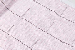 Fermez-vous d'un électrocardiogramme sous la forme de papier, soins de santé médicaux Photographie stock