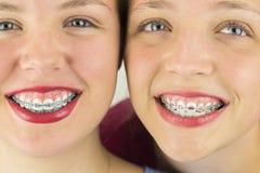 Fermez-vous de deux visages de jeunes filles Images stock
