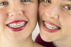 Fermez-vous de deux visages de jeunes filles Photos stock