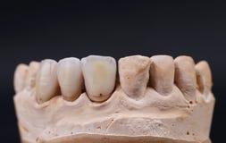 Fermez-vous de la mâchoire prothetic dentaire. images stock