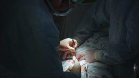 Fermez-vous des chirurgiens composent la chirurgie avec la blessure ouverte à l'estomac Les médecins utilisent le scalpel et la b clips vidéos