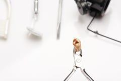 Fermez-vous des dents avec la cavité photographie stock