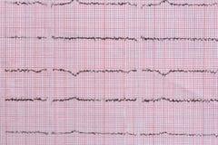 Fermez-vous du cardiogramme utilisé comme fond, thème médical photos stock