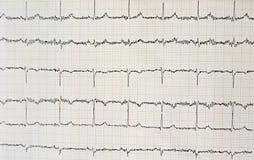 Fermez-vous du papier d'électrocardiogramme d'ECG Photographie stock libre de droits