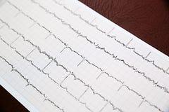 Fermez-vous du papier d'électrocardiogramme d'ECG Image stock
