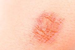 Fermez-vous sur la contusion douloureuse enroulée sur le genou photos stock