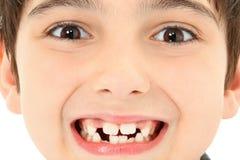 Fermez-vous vers le haut des dents manquantes Photo libre de droits
