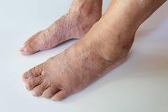 Fermez-vous vers le haut des veines variqueuses sur la jambe Photos stock