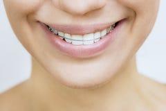 Fermo per i denti - bella ragazza sorridente con il fermo per te fotografia stock libera da diritti