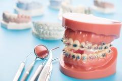 Ferramentas do dentista e modelo ortodôntico Fotos de Stock