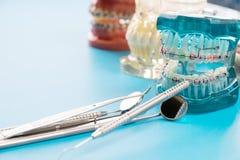 Ferramentas do dentista e modelo ortodôntico Foto de Stock Royalty Free