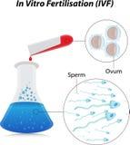 Fertilizzazione in vitro illustrazione vettoriale