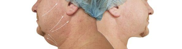 Fetma för borttagning för manlig dubbelhakakorrigering som plast- före och efter drar åt tillvägagångssätt royaltyfri foto