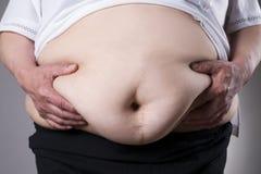 Fetmakvinnakropp, fet kvinnlig buk med ett ärr från buk- kirurgislut upp arkivfoton