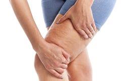 Fett und Cellulite auf den Beinen lizenzfreie stockfotografie