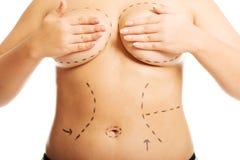 Fette Frau vor einer plastischen Chirurgie Stockfotografie