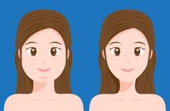 Fette und dünne Frauen lizenzfreie abbildung