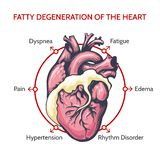 Fetthaltige Degeneration des Herzens Symptome der Todillustration vektor abbildung