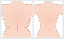Fettrückseite vor und nach Behandlung Lizenzfreies Stockbild