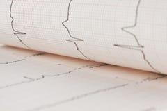 Feuille de coeur d'électrocardiogramme Images stock